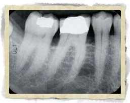 X-ray showing Periodontitis